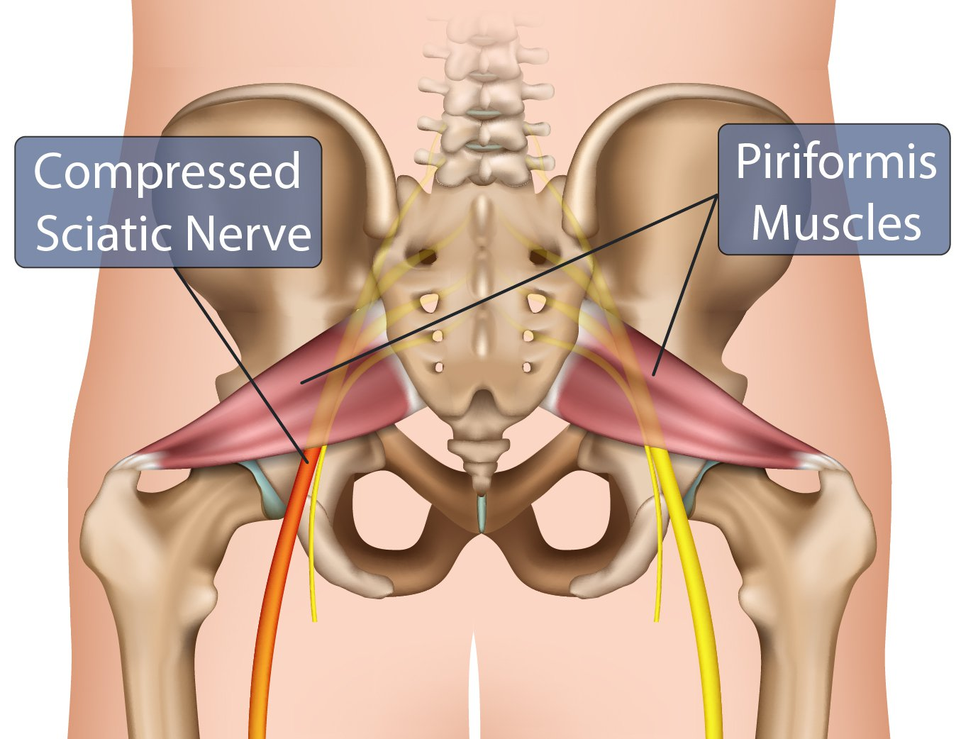 Piriformis Muscles Compressed Nerve