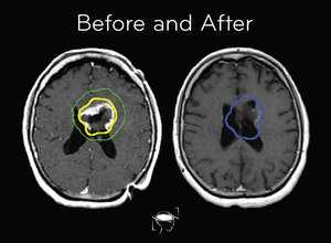 glioblastoma-before-and-after-treatment