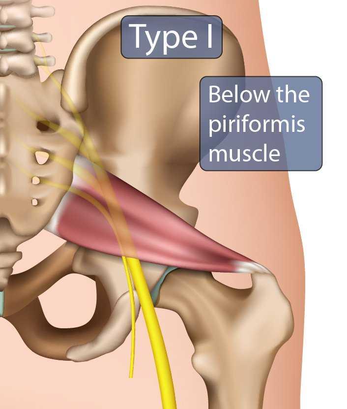 Type I Sciatic Nerve
