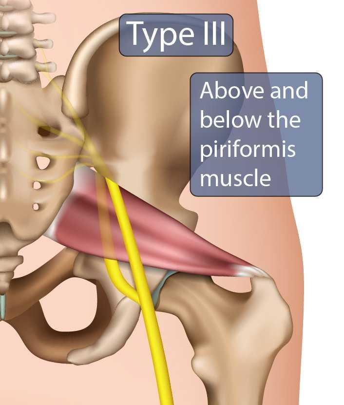 Type III Sciatic Nerve
