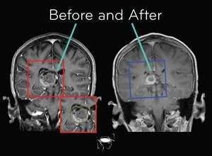 astrocytoma-before-and-after-treatment