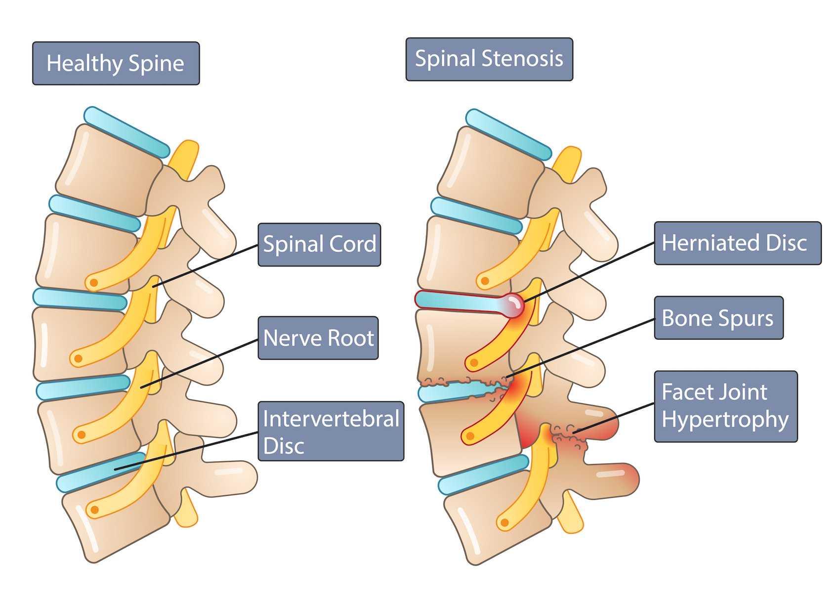 Spinal Stenosis Versus Healthy Spine Anatomy