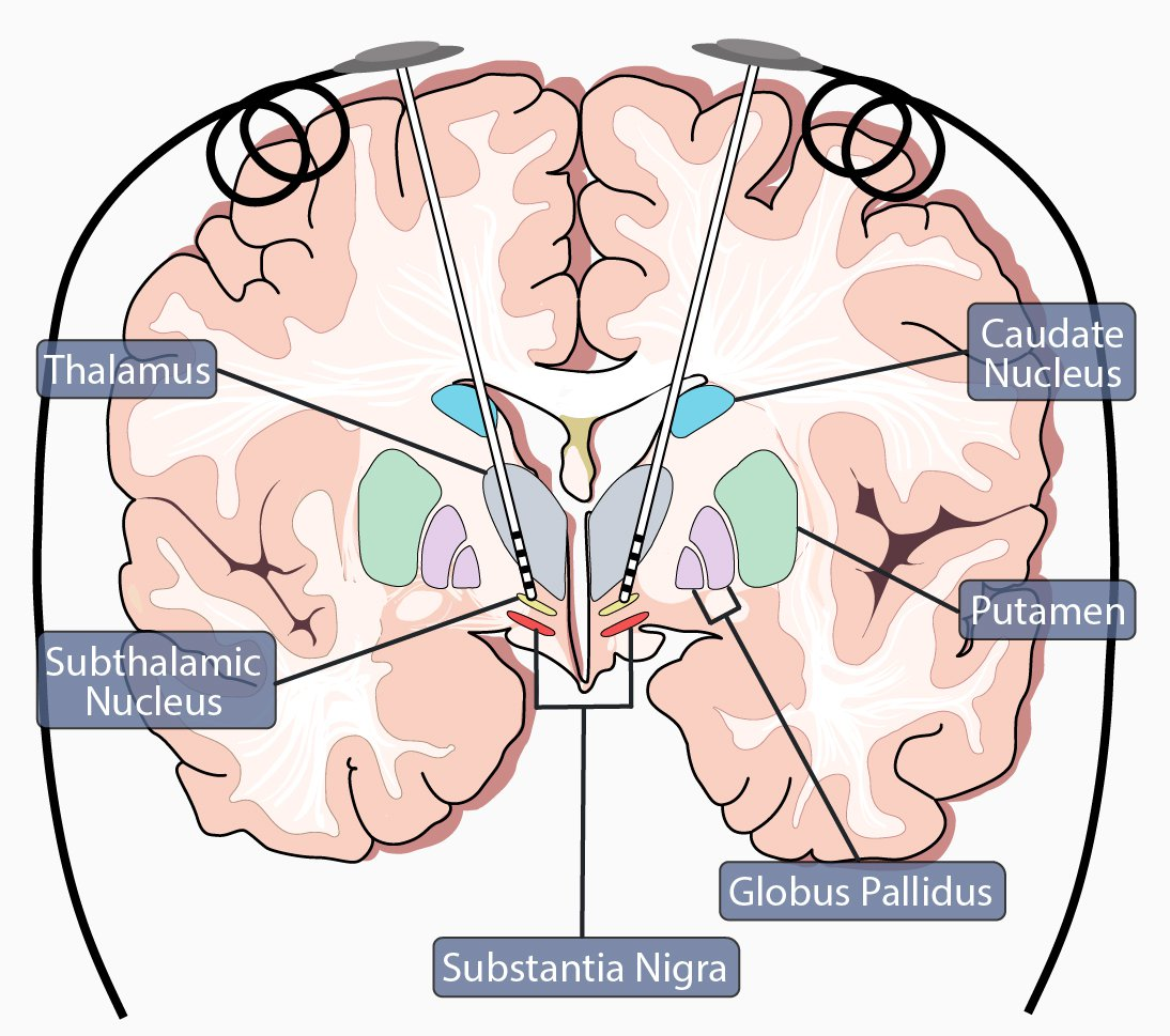 DBS Implanted in Brain (Subthalamic Nucleus)