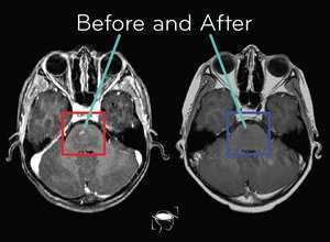 glioma-before-and-after-treatment