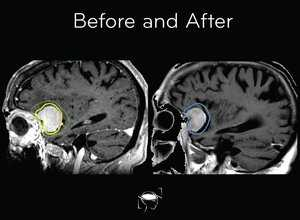 meningioma-before-and-after-treatment
