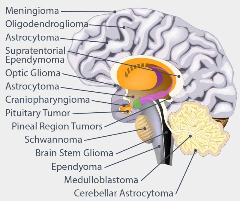 brain-tumor-locations