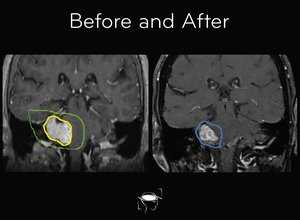 acoustic-neuroma-before-and-after-treatment